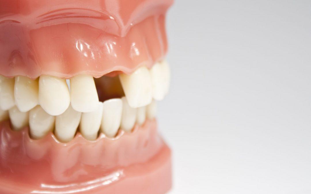 La perte des dents est-elle inévitable avec l'âge ?